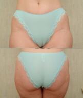 Panty Ass